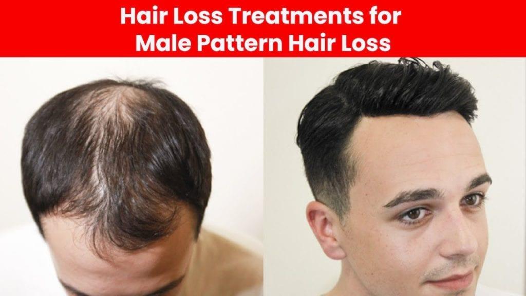 hair loss men treatment